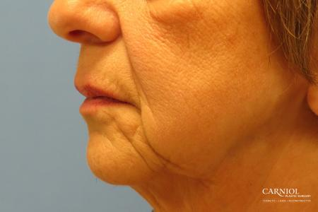 Non-Surgical Mini-Facelift: Patient 9 - Before and After Image 3