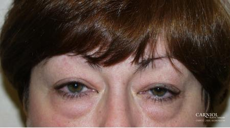 Eyelid Lift: Upper and Lower Blepharoplasty - Before Image