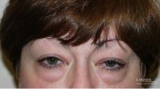 Eyelid Lift: Upper and Lower Blepharoplasty - Before Image