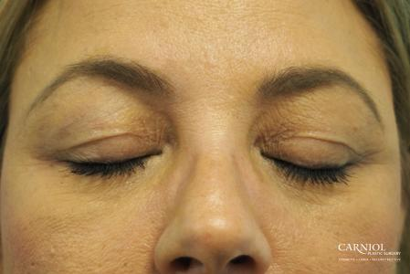 Blepharoplasty: Patient 1 - Before and After Image 2
