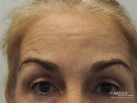 BOTOX® Cosmetic: Patient 5 - After Image 2