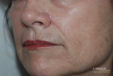 Skin Cancer Reconstruction - Face: Patient 3 - After Image