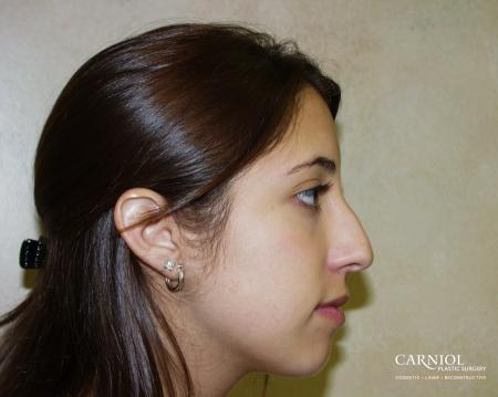Rhinoplasty: Patient 1 - Before Image 1