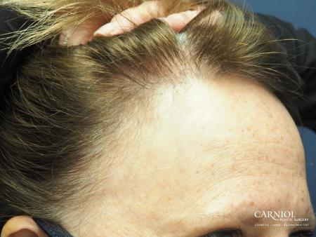 Nonsurgical Hair Restoration: Patient 1 - After Image 2