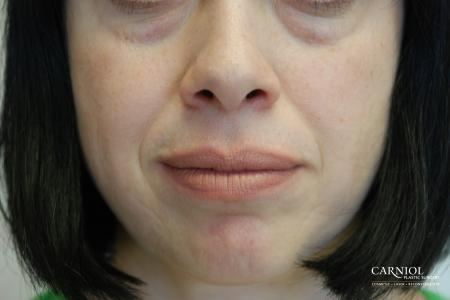 Fillers: Patient 2 - Before Image