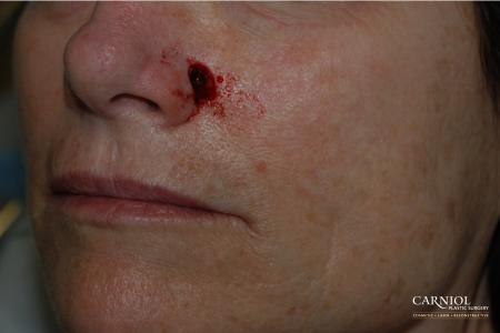 Skin Cancer Reconstruction - Face: Patient 3 - Before Image