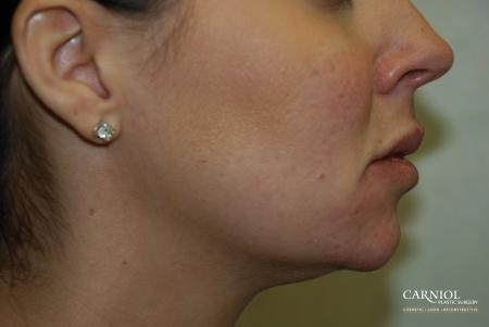 Non-Surgical Mini-Facelift: Patient 4 - After Image 1