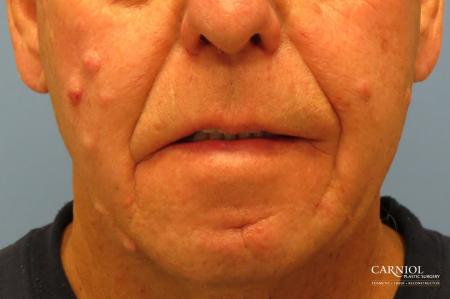 Mole/Age Spot Removal: Patient 2 - Before Image