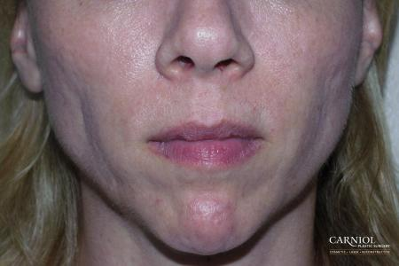 Facial Tightening: Patient 8 - Before Image