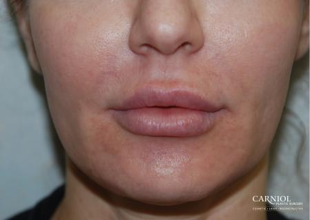 Lip Augmentation: Patient 5 - After Image 1