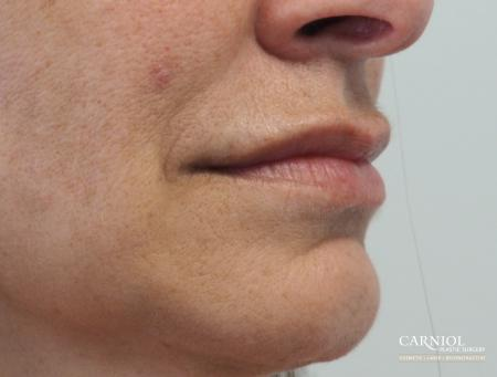 Lip Augmentation: Patient 8 - After Image 2