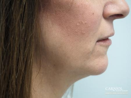 Non-Surgical Neck Lift: Patient 1 - After Image