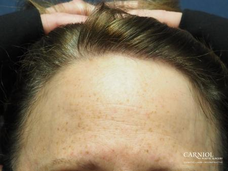 Nonsurgical Hair Restoration: Patient 1 - After Image