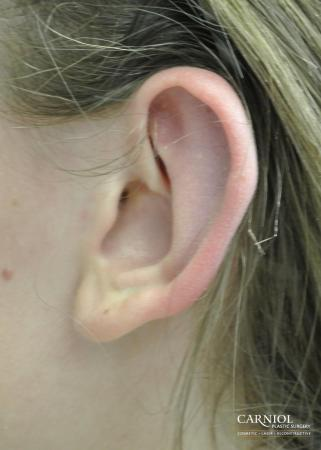 Ear Pinning - After Image