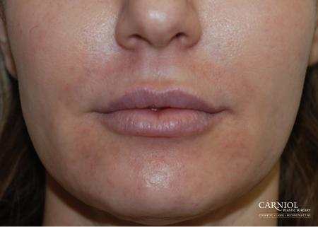 Lip Augmentation: Patient 4 - Before Image 1