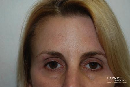 BOTOX® Cosmetic: Patient 1 - After Image 1