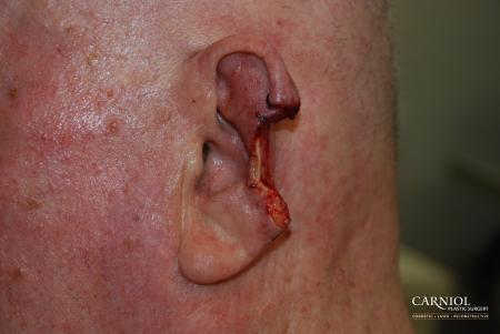 Skin Cancer Reconstruction - Face: Patient 1 - Before Image
