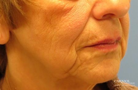 Non-Surgical Mini-Facelift: Patient 9 - Before Image 2