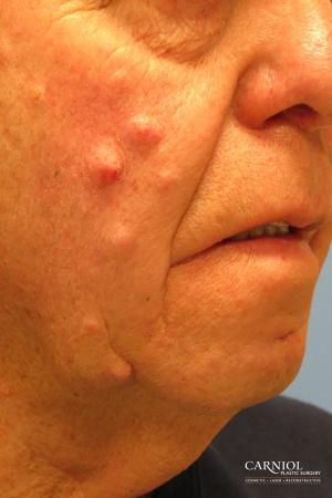 Mole/Age Spot Removal: Patient 2 - Before and After Image 2