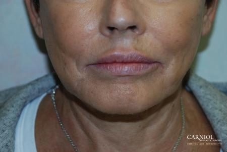 Lip Augmentation: Patient 4 - After Image