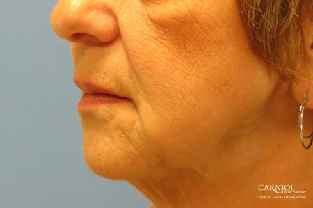 Non-Surgical Facelift: Patient 1 - After Image 3