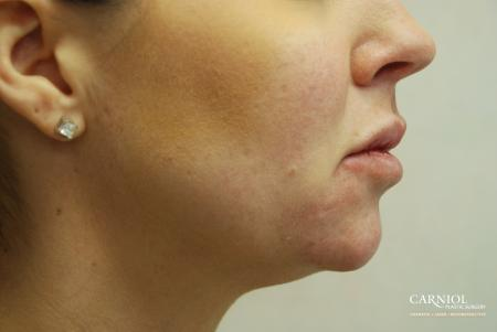 Non-Surgical Mini-Facelift: Patient 4 - Before Image
