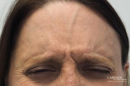 BOTOX® Cosmetic: Patient 4 - Before and After Image 3