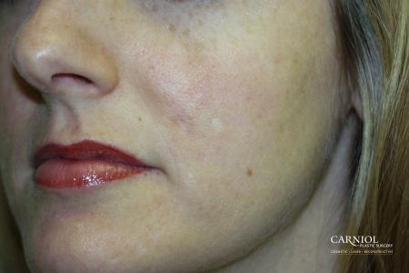 Acne Rejuvenation: Patient 2 - After Image
