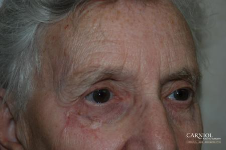 Skin Cancer Reconstruction - Face: Patient 5 - After Image