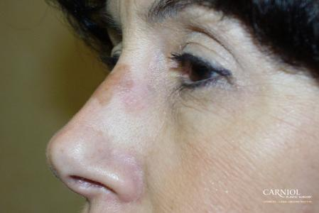Laser Skin Resurfacing - Face: Patient 1 - Before Image