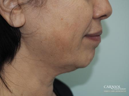 Non-Surgical Mini-Facelift: Patient 1 - Before Image 1