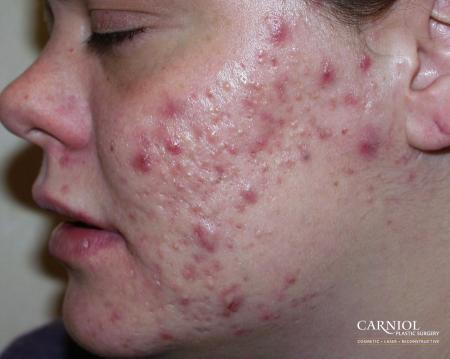 Acne Rejuvenation: Patient 1 - Before Image