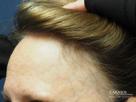 Nonsurgical Hair Restoration: Patient 1 - After Image 3