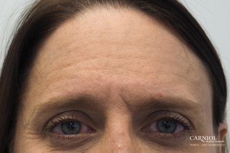 BOTOX® Cosmetic: Patient 4 - Before Image 1