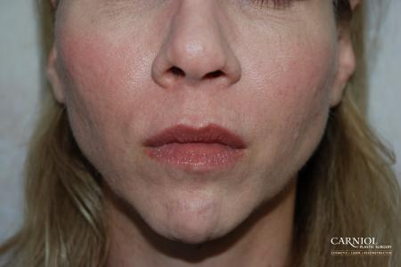 Non-Surgical Mini-Facelift: Patient 8 - After Image