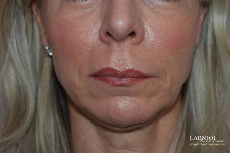 Non-Surgical Mini-Facelift: Patient 7 - After Image