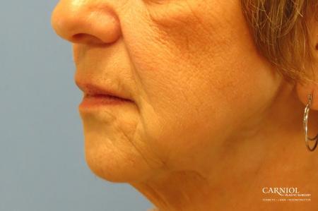 Non-Surgical Mini-Facelift: Patient 9 - After Image 3