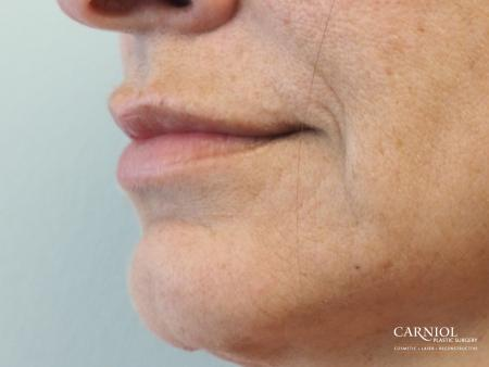 Lip Augmentation: Patient 8 - After Image 3