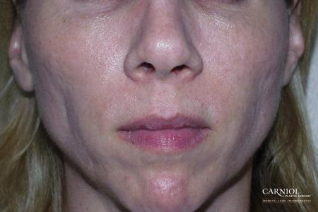 Non-Surgical Facelift: Patient 10 - Before Image