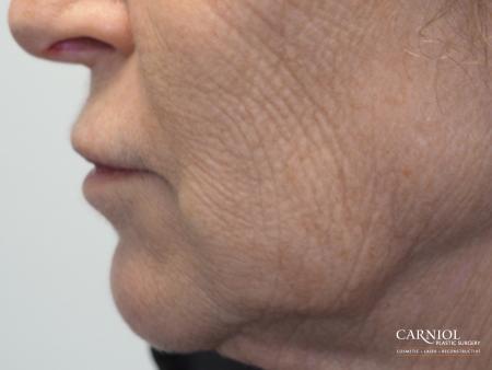 Laser: Patient 1 - After Image 1
