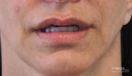 Lip Augmentation: Patient 8 - After Image 1