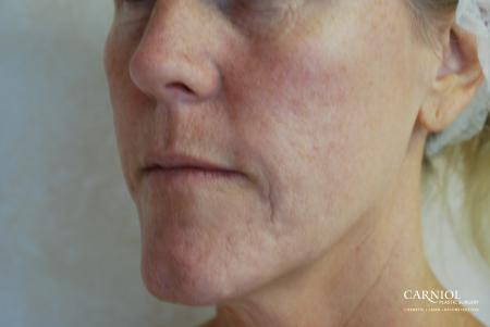 Fractional Resurfacing: Patient 3 - Before Image