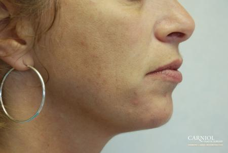 Non-Surgical Mini-Facelift: Patient 3 - After Image