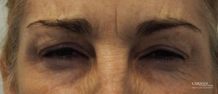 BOTOX® Cosmetic: Patient 5 - After Image 3