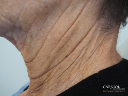 Non-Surgical Neck Lift: Patient 2 - Before Image