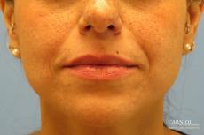 Lip Augmentation: Patient 1 - Before Image