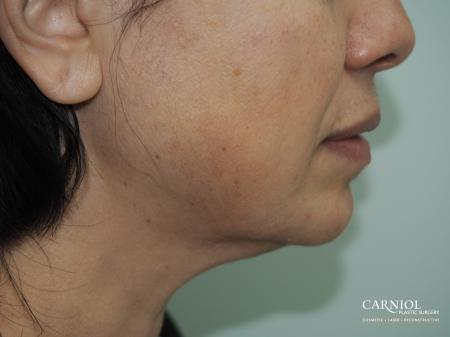 Non-Surgical Mini-Facelift: Patient 1 - After Image 1