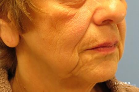 Non-Surgical Facelift: Patient 1 - Before Image 2