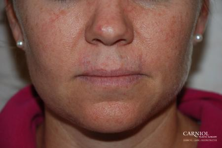 Skin Cancer Reconstruction - Face: Patient 6 - After Image
