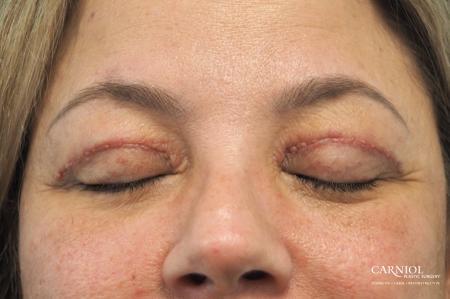 Blepharoplasty: Patient 1 - After Image 2